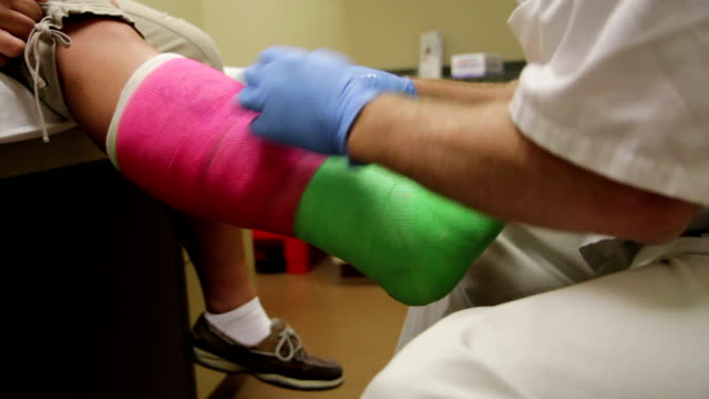 Wrapping Cast on Leg video