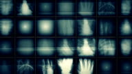 x ray picture background video
