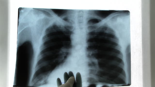X-ray Image, video