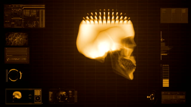 x-ray scan of skull in sepia video