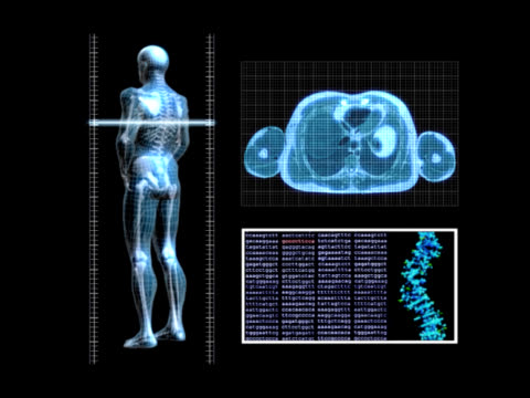 X-Ray Scan video