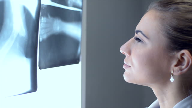 Young beautiful female doctor examines the x-ray picture. video