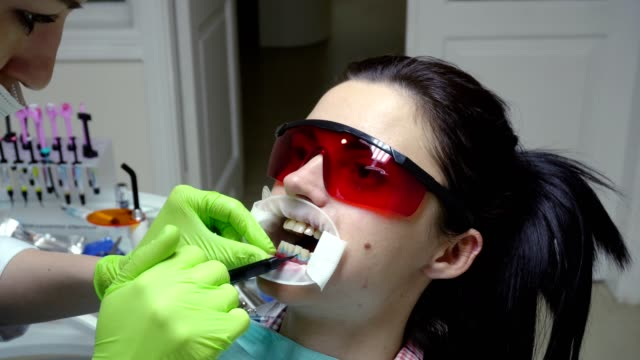 Young woman with an expander in mouth at the dental clinic. Application of protective whitening gel to the teeth. Modern dental office. Shot in 4k video