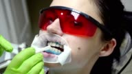 Young woman with an expander in mouth at the dental clinic. Application of protective whitening gel to the teeth. Dentist using saliva ejector or dental pump to evacuate saliva. Shot in 4k video