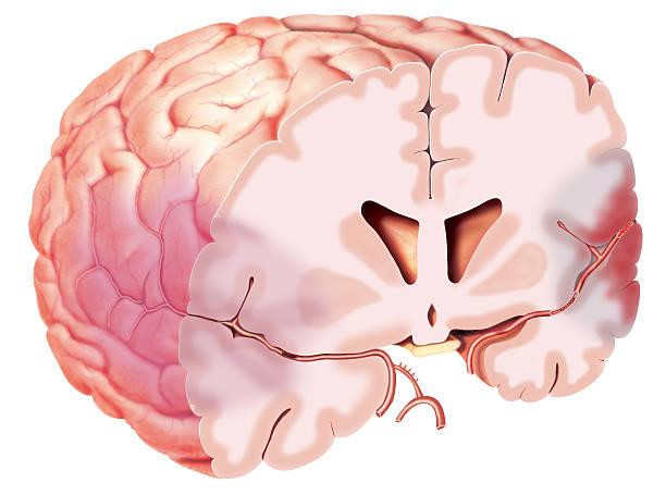 3DBrain Ilustração de um corte transversal do cérebro mostrando um AVC e suas consequências, áreas comprometidas pelo êmbolo que impede a passagem sanguínea através da artéria cerebral média. Isquemia cerebral. lateral ventricle stock illustrations