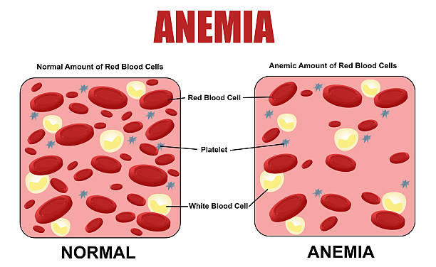 Anemia diagram Anemia diagram, (for basic medical education, for clinics & Schools) anemia stock illustrations