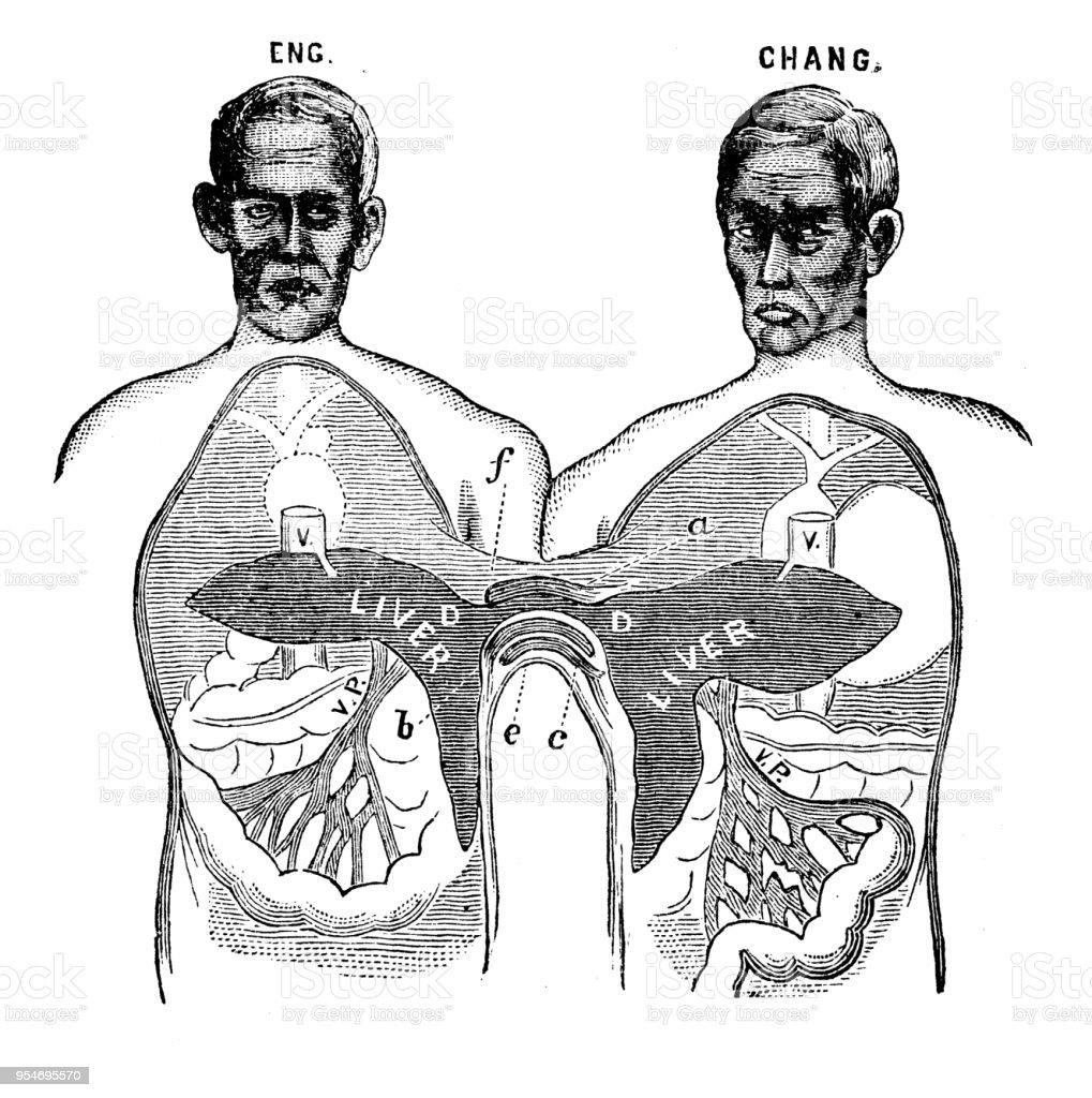 Ilustración de Antiguo Grabado De La Ilustración Gemelos Siameses y ...