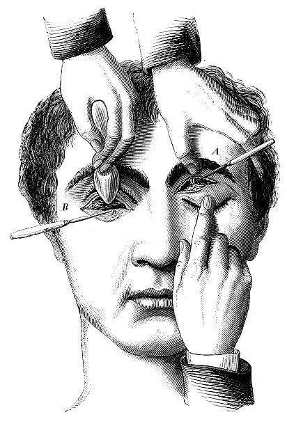 antique medical scientific illustration high-resolution: eye surgery - autopsy stock illustrations, clip art, cartoons, & icons