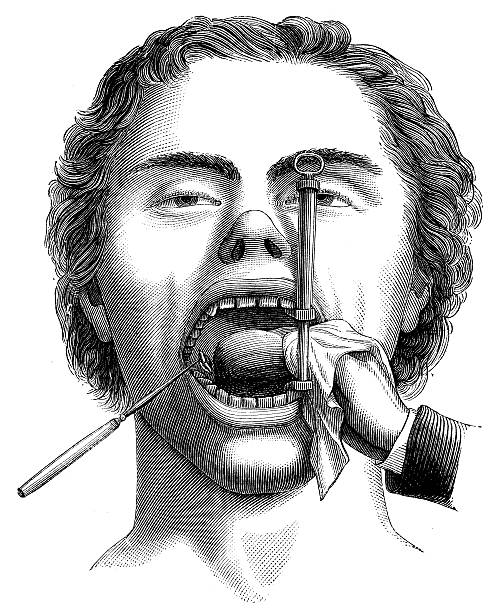 antique medical scientific illustration high-resolution: mouth surgery - autopsy stock illustrations, clip art, cartoons, & icons