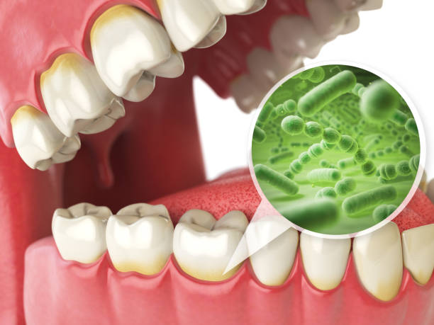 ilustrações de stock, clip art, desenhos animados e ícones de bacterias and viruses around tooth. dental hygiene medical concept. - boca suja