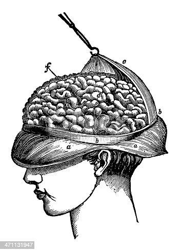 Antique engraving of human human brain surgery. Published in Systematischer Bilder-Atlas zum Conversations-Lexikon, Ikonographische Encyklopaedie der Wissenschaften und Kuenste (Brockhaus, Leipzig) in 1844. Photo by N.Staykov (2008)