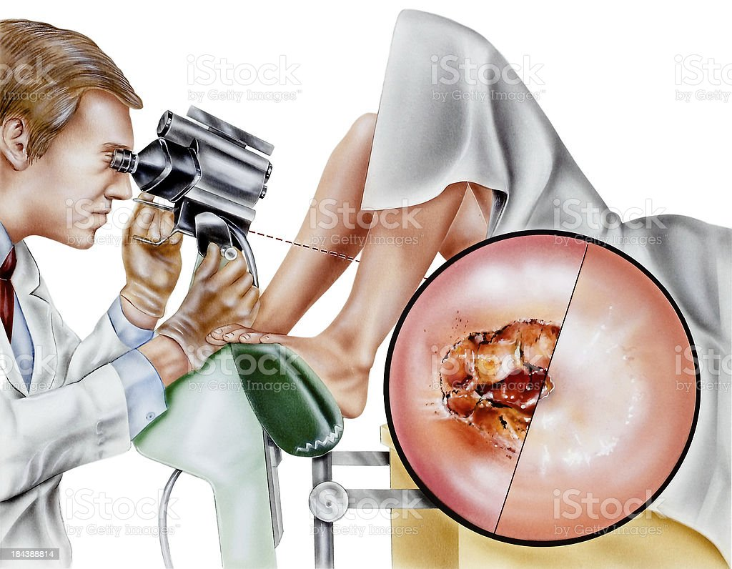 Cervix - Cervical Laser Surgery royalty-free stock vector art