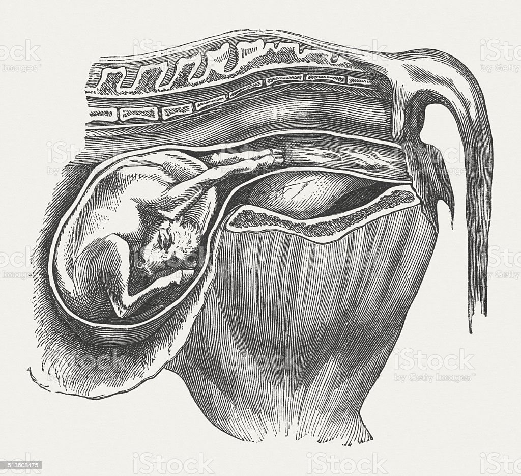 Cow fetus: Abnormal position, bent downward head, published 1883 vector art illustration