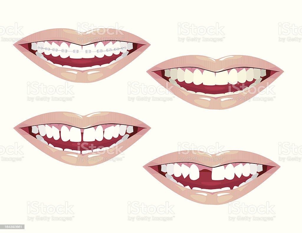 Dental Aesthetics royalty-free stock vector art