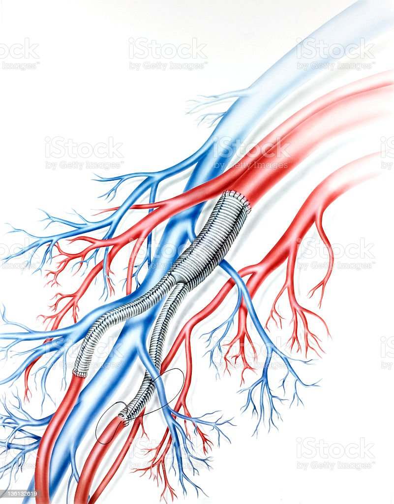 Depiction of the Teflon arterial grafts in the lung vector art illustration