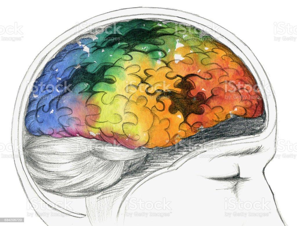 Diseased human brain vector art illustration