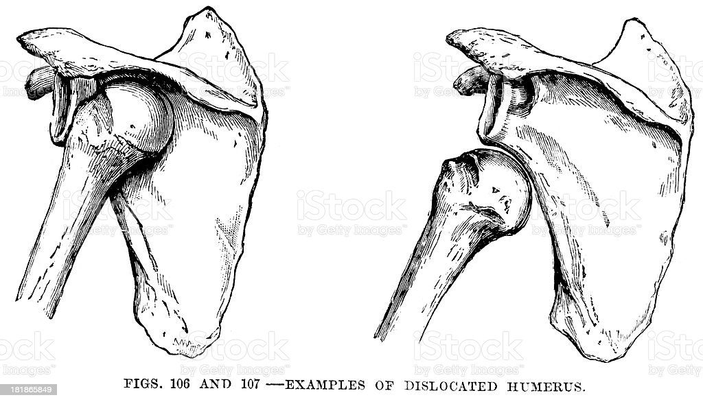 Dislocated Oberarmknochen Stock Vektor Art und mehr Bilder von 19 ...
