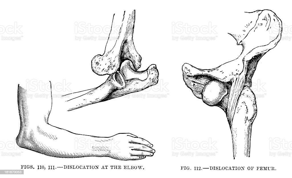 Dislocation of Elbow and Femur vector art illustration