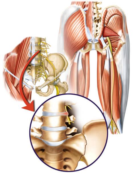DorCiatica Causas relacionadas ao nervo ciático. human muscle stock illustrations