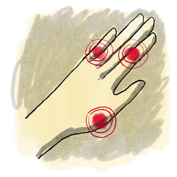 Drawing of hand with pain highlights Hand drawing with red pain spots kathrynsk stock illustrations