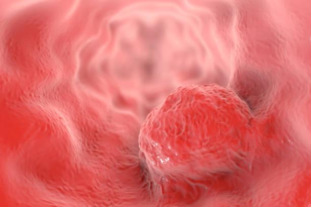 ilustraciones, imágenes clip art, dibujos animados e iconos de stock de cáncer de esófago, ilustración - cáncer tumor