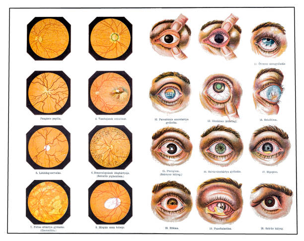 eye problems - сетчатка stock illustrations