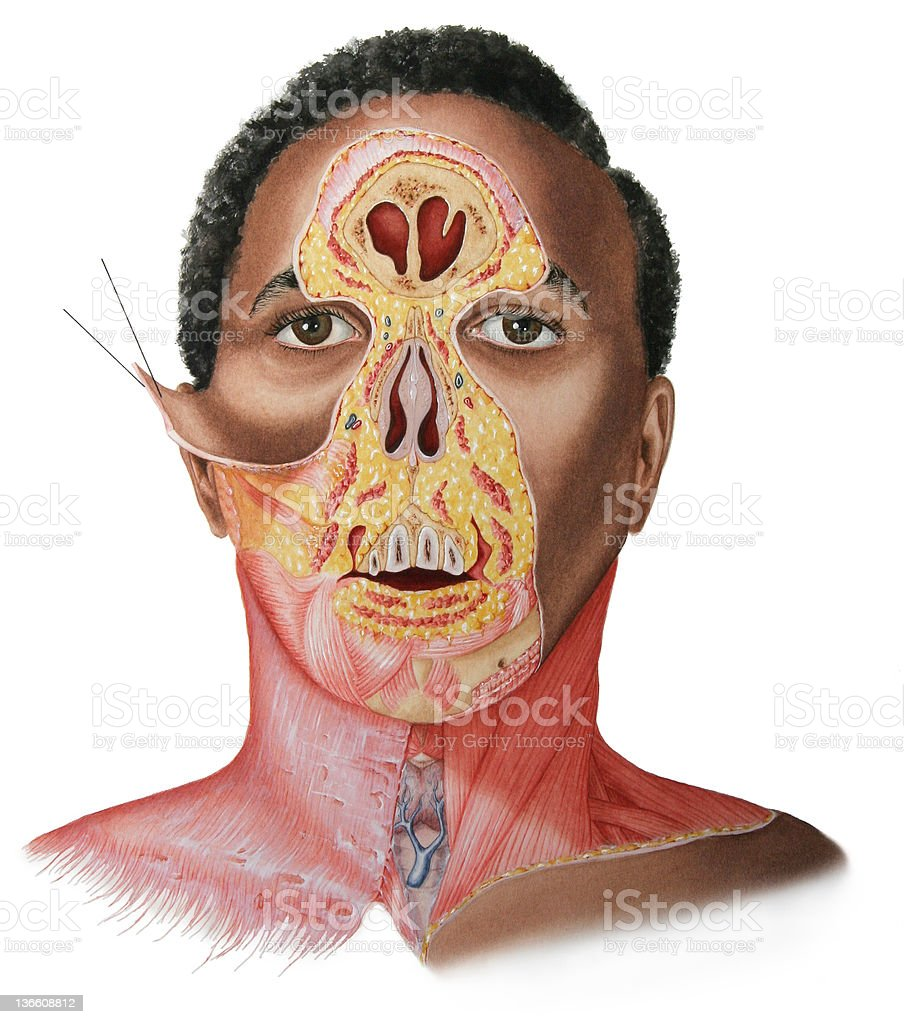 Face Amp Neck Dissection Male Stock Vector Art & More Images of ...