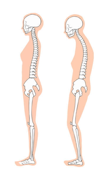 Female correct and bad skeleton medical good posture stock illustrations