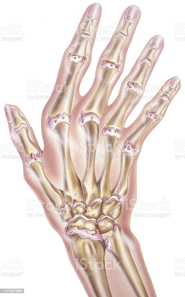 Hand And Fingers Osteoarthritis Of The Joints Stock Vector Art ...