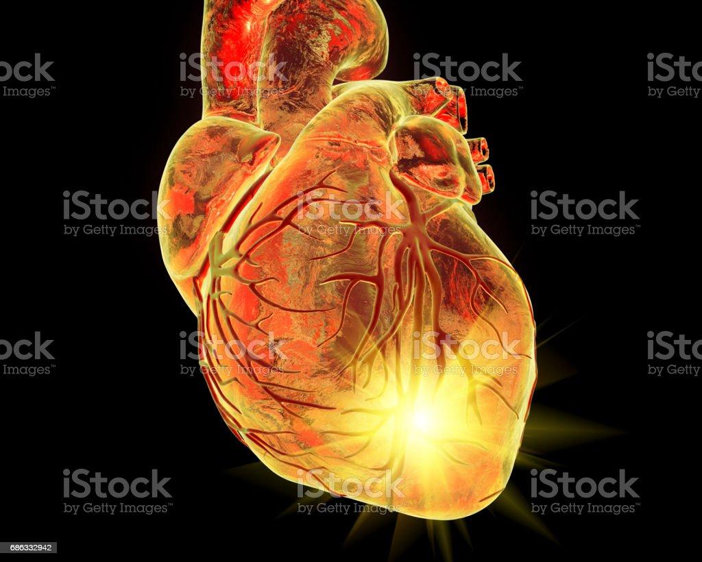 Heart attack, coneptual illustration vector art illustration