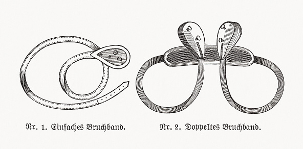 1) Single hernia truss pad; 2) Double hernia truss pad. In medicine, a truss is a kind of surgical appliance, particularly one used for hernia patients. A truss provides support for the herniated area, using a pad and belt arrangement to hold it in the correct position. Early versions of the hernia truss were made of leather and steel with metal springs. Wood engravings, published in 1893.