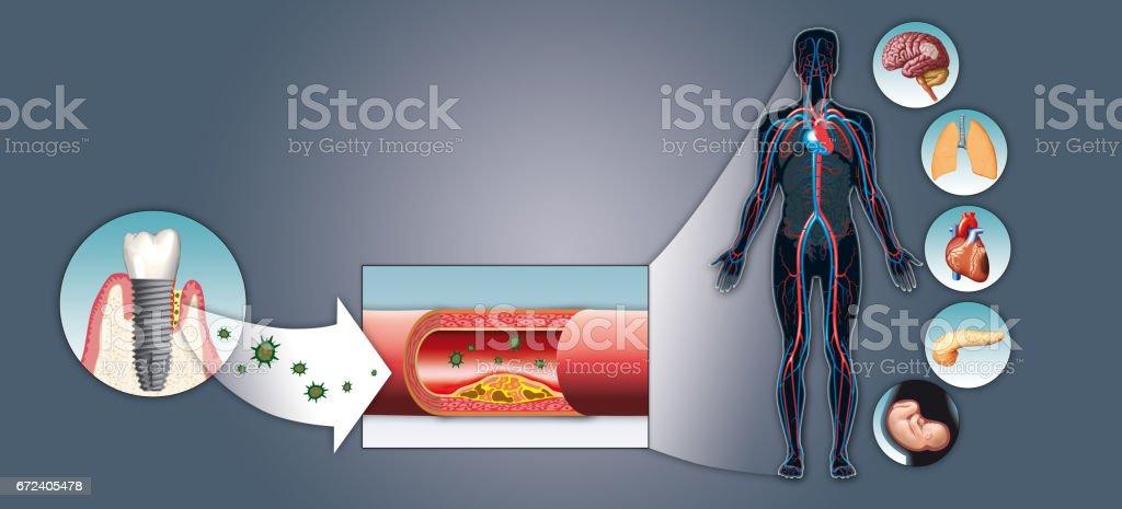 Impact of Periimplantitis on body vector art illustration