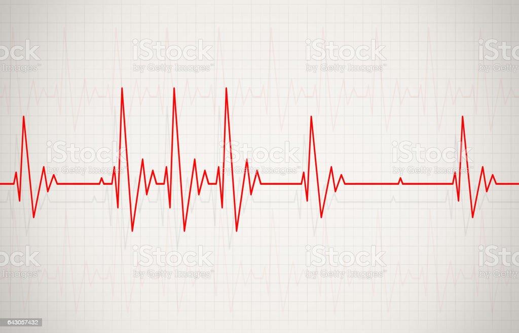 Heartbeat Line Art : Royalty free cardiac arrhythmia clip art vector images