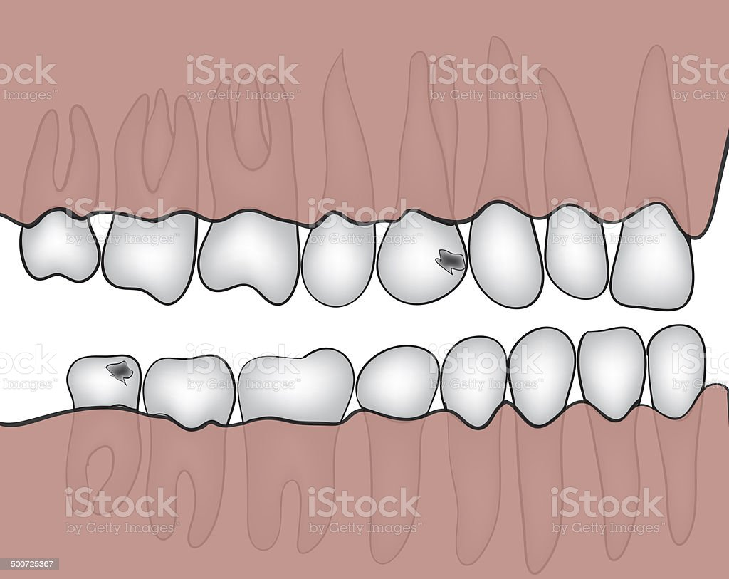 jaw royalty-free stock vector art