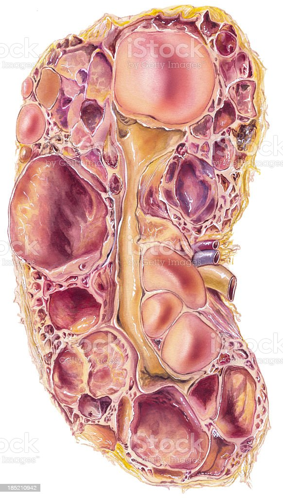 Kidney - Polycystic  Disease royalty-free stock vector art