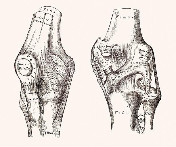 ilustraciones, imágenes clip art, dibujos animados e iconos de stock de las articulaciones de las rodillas, médicos medio siglo 19 - medicina del deporte
