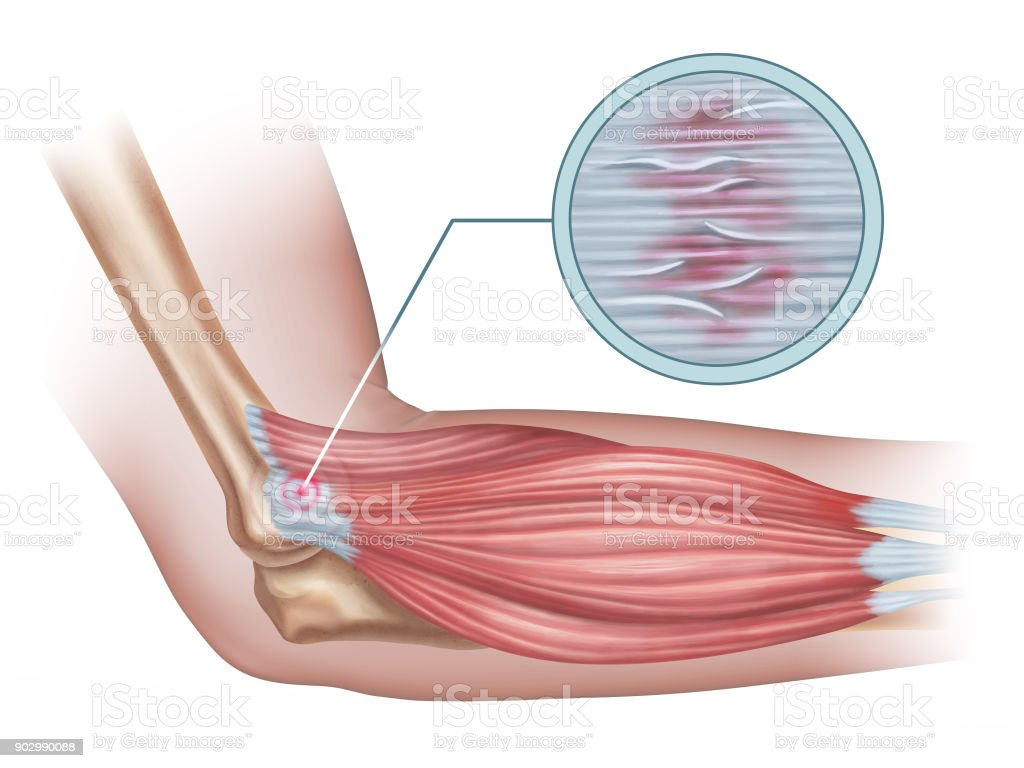 Lateral epicondylitis vector art illustration