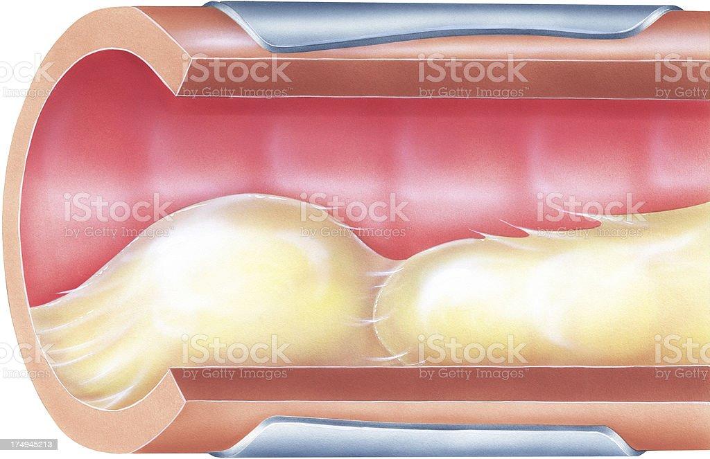 Ilustración de Pulmones Bronquial Mucosidad Causa La Obstrucción De ...