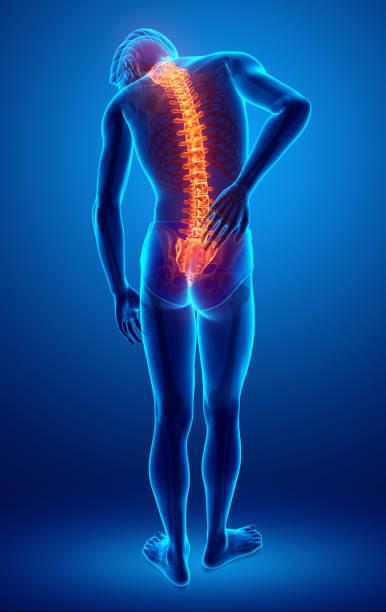ilustrações, clipart, desenhos animados e ícones de male feeling the back pain - ortopedia