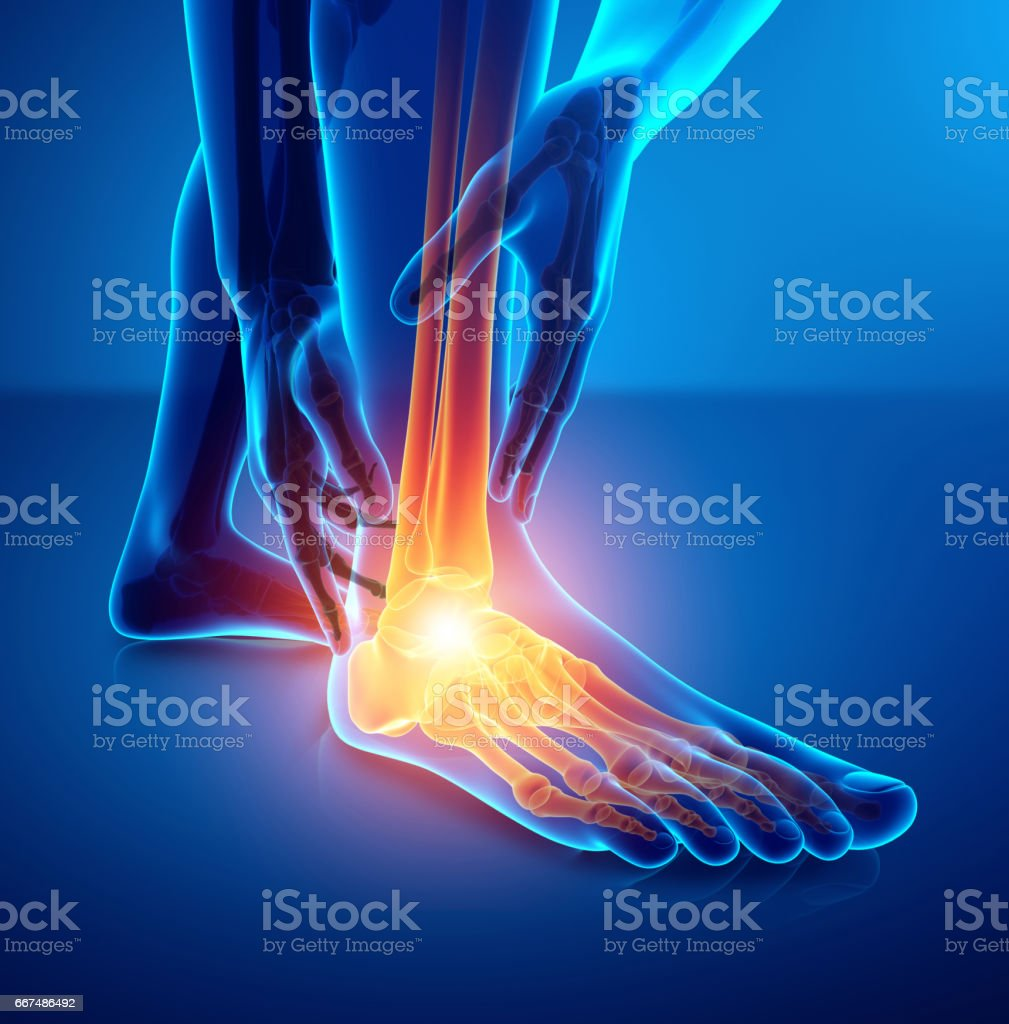 Male foot with ankle pain vector art illustration