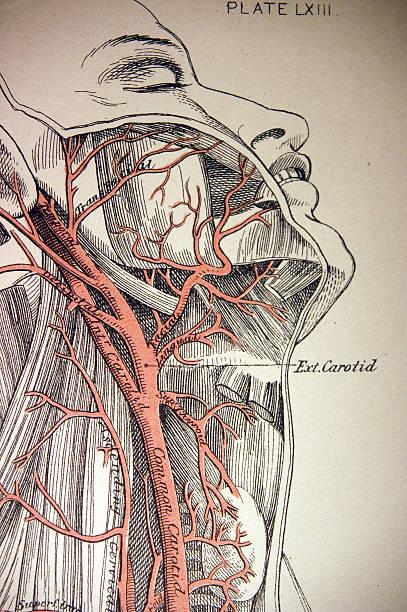 medical illustration of a carotid artery - autopsy stock illustrations, clip art, cartoons, & icons
