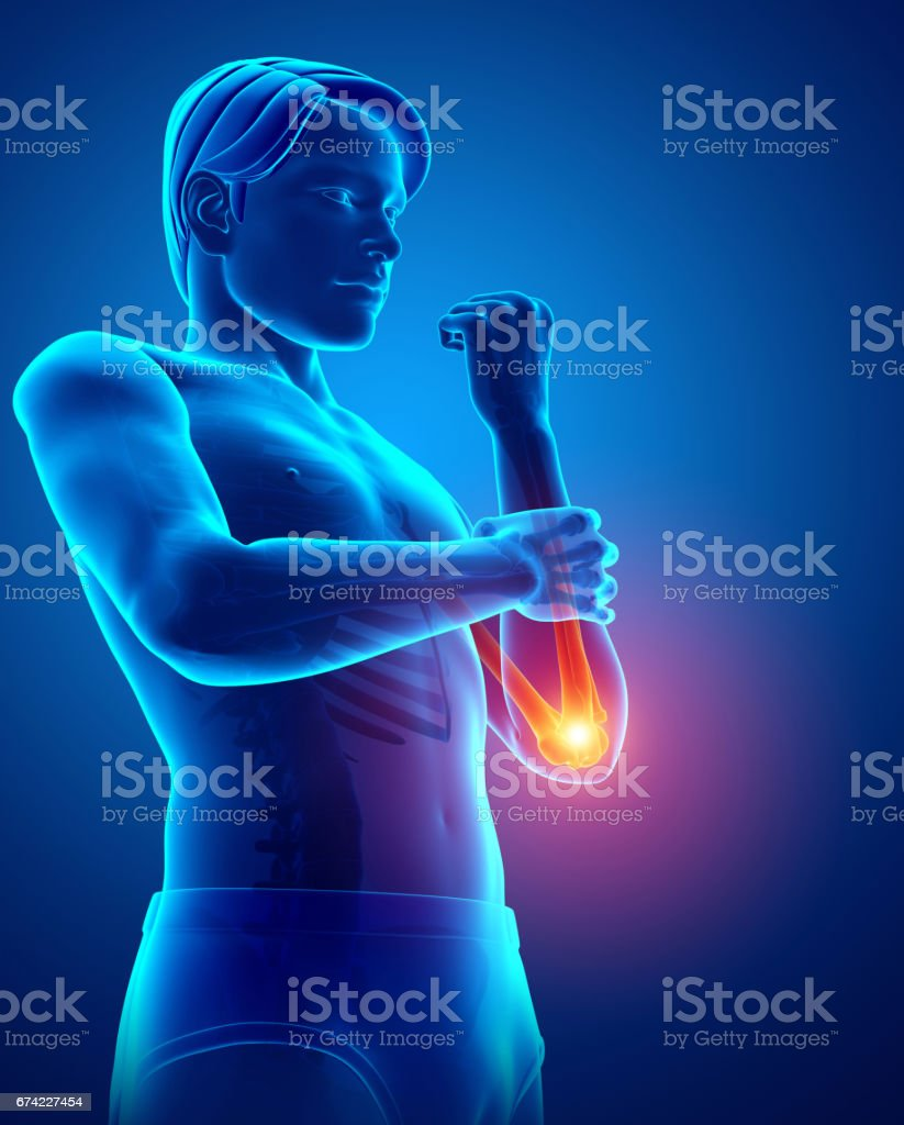 Men Feeling The Elbow Pain Pain Stock Vector Art & More Images of ...