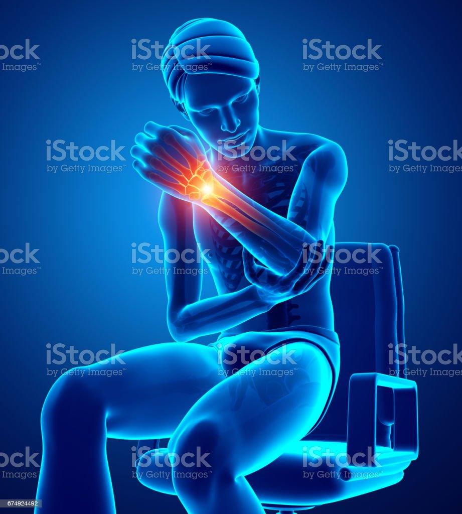 Men Feeling the Wrist Pain royalty-free men feeling the wrist pain stock vector art & more images of anatomy