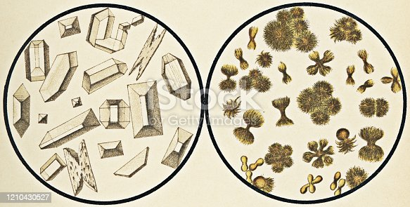 Microscopic view of struvite crystals [left] and uric acid crystals [right] in human urine. Vintage etching circa mid 19th century.