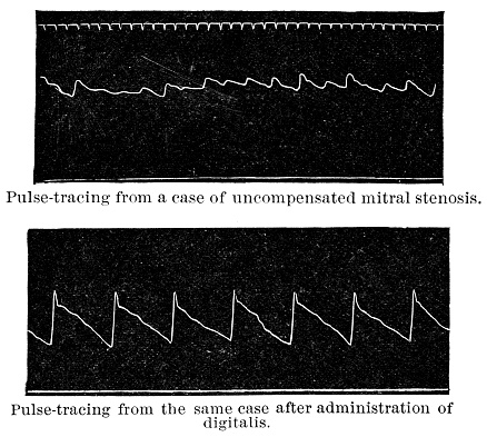 Mitral Stenosis Heart Disease Pulse-Trace from a Sphygmograph, Before and After Treatment With Foxglove - 19th Century