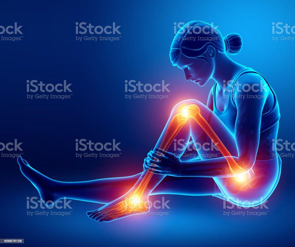 Pain in leg vector art illustration