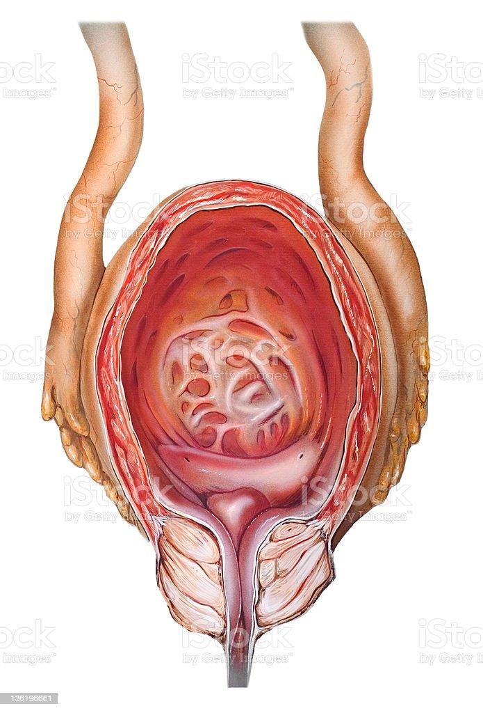 Prostate Benign Prostatic Hypertrophy Stock Vector Art & More Images ...