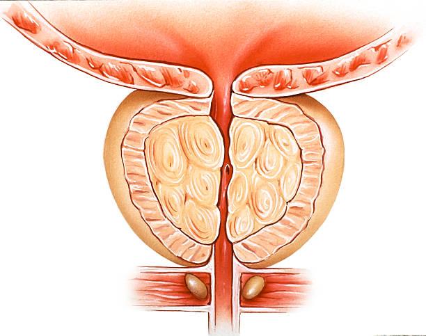 Prostate Hyperplasia 1 Art