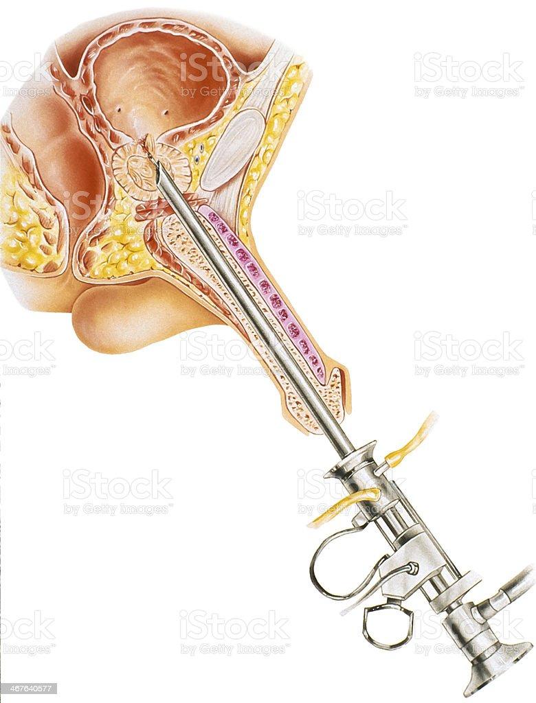 resezione transuretrale di prostata turp en
