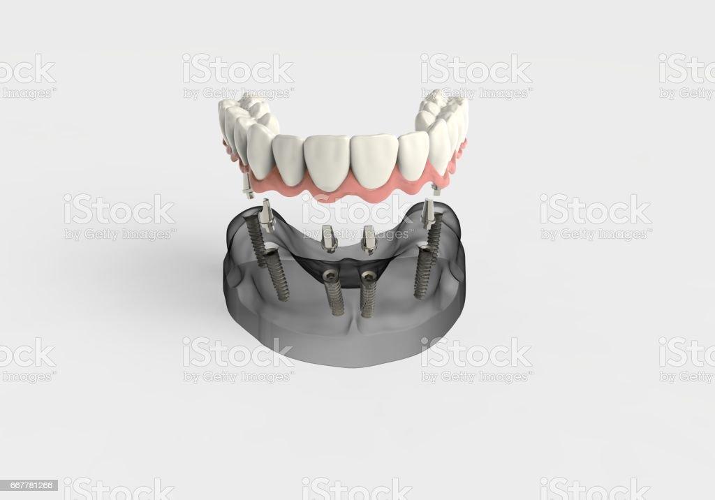 3D rendering implantat vector art illustration